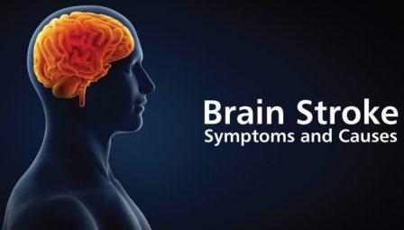 Brain stroke: ब्रेन स्ट्रोक: क्या हैं लक्षण, सावधानियां व बचाव के उपाय