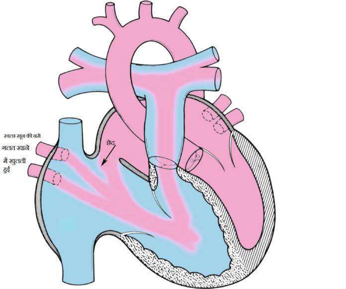AIIMS Rishikesh: पी.ए.पी.वीसी व दिल में छेद की सफल सर्जरी कर दिया जीवनदान