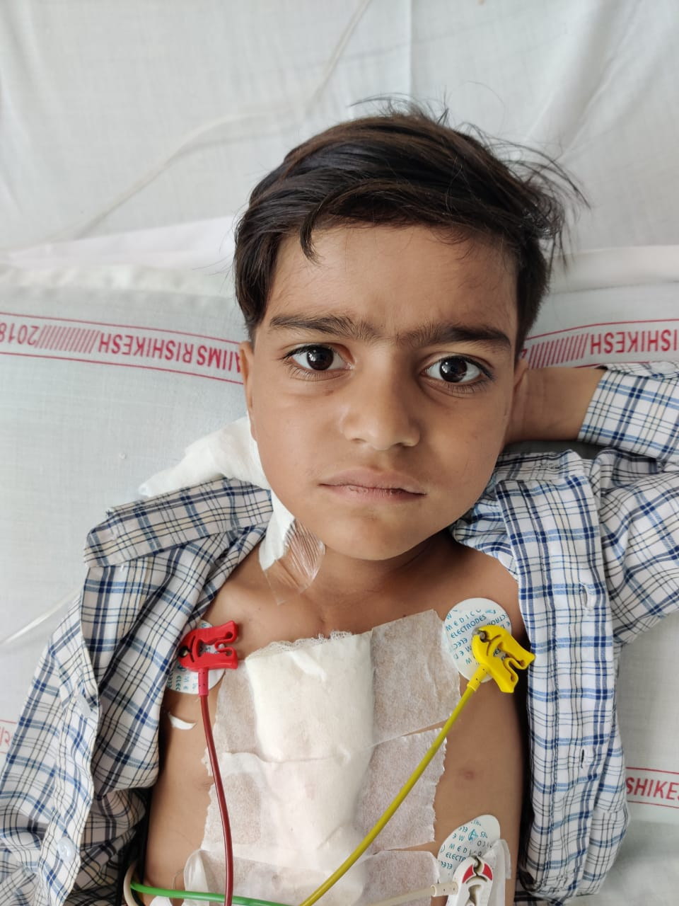 AIIMS Rishikesh: बच्चे के दिल का जटिल ऑपरेशन, दिल में छेद के साथ थे फेफड़े में खून के थक्के