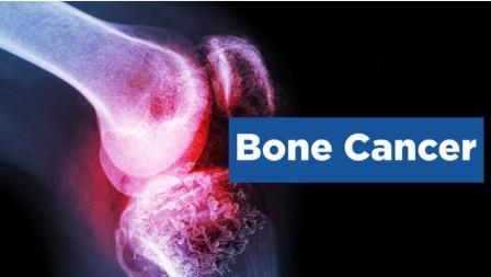 एम्स ऋषिकेश: लिम्ब साल्वेज सर्जरी से दी कैंसर को मात